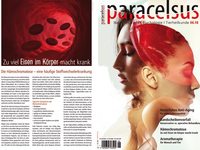 Neuer Artikel zur Hämochromatose im Paracelsus Magazin 6/18   Praxis Schleicher & Brückl