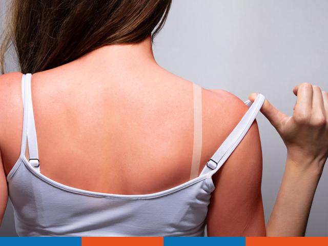 So beugen Sie einen Sonnenbrand vor | Praxis Schleicher & Brückl